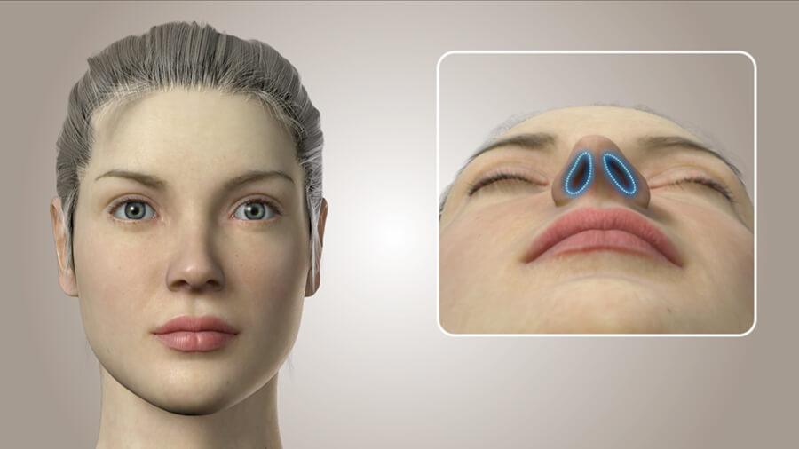 Burun estetiğinde 3D teknolojisi